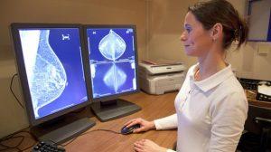 Un-nuevo-estudio-indica-que-las-mamografias-reducen-la-mortalidad-por-cancer-de-mama image 380