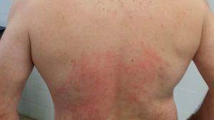 Espalda lesionada /Colega Torremolinos